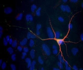 Основные проекции нервных клеток, аксоны окрашена в зеленый цвет, дендриты в красный. Ядра показаны синим цветом на рисунке.
