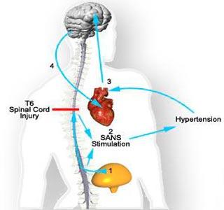 Систолическая гипертония классификация, причины,