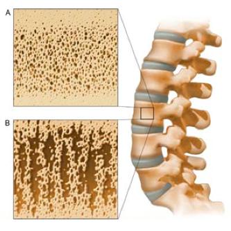 Лечение Остеопороза при Травмах Спинного Мозга