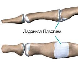 Деформация Пальцев Типа «Шея Лебедя»