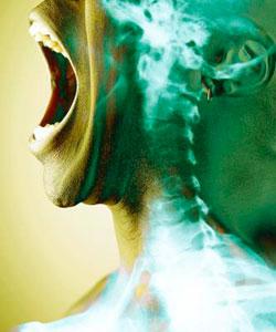 Гиперкальциемия и Травма Спинного Мозга