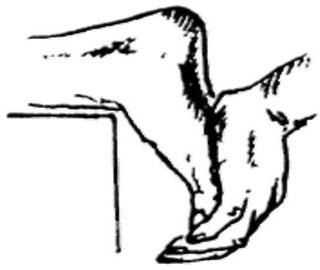 Что Такое Паралитически Разболтанная Стопа и Гипермобильность Суставов Ног