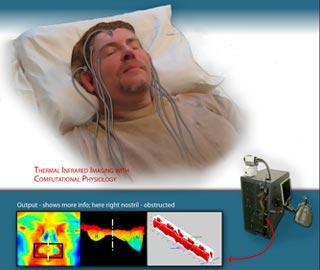 Травма Спинного Мозга Вызывают Серьезные Расстройства Дыхания во Время Сна