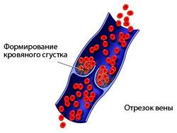 Дифференциальная Диагностика и Профилактика Тромбоза при Травмах Спинного Мозга