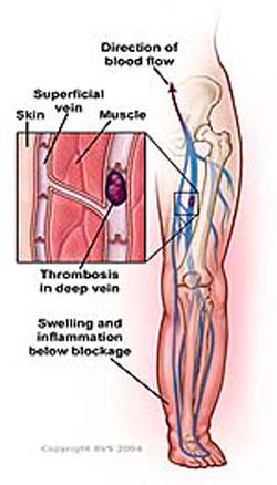 Предупреждение Тромбоэмболии при Травмах Спинного Мозга