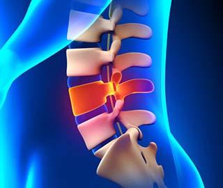 Электрическая стимуляция нервов может изменить повреждение спинного мозга