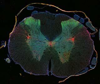 Травма спинного мозга: регенерация возможна с «epothilone»