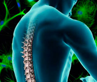 Клиническое Исследование Оценит Безопасность Трансплантаций Стволовых Клеток в Позвоночник