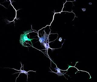 Как Нейроны Проводят Сигналы