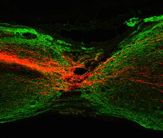 Исследователи обнаруживает способов регенерации аксонов кортико путей