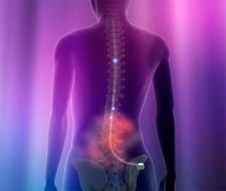 Стимуляторы Спинного Мозга Работают Лучше, Если Имплантированы в Начале