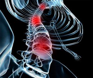 Травмы Спинного Мозга Улучшились - После Генной Терапии