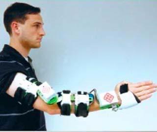 Реабилитация: робот рукав для функциональной электростимуляции