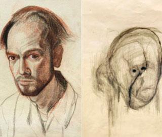 Свои Страдания Художник с Болезнью Альцгеймера Отразил в Автопортретах