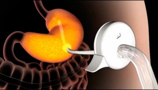 Устройство для потери веса – Ешь сколько угодно, насос всё откачает