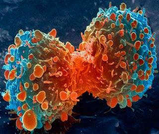 Новый Препарат Помогает Уничтожить в Организме Раковые Клетки