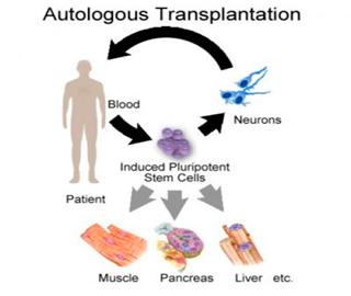 Собственные Клетки Пациента Могут Быть Использованы в Качестве Препарата для Лечения Болезни Паркинсона