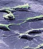 Борьба с Непроверенными Методами Лечения Стволовыми Клетками
