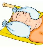 5 ключевых замечания по задержкам лечения травмы спинного мозга шейного отдела