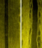 Белок Создает Пути для Выращивания Нервных Клеток