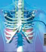 Электрокардиостимуляторы Диафрагмы Помогают Пациентам с Травмой Спинного Мозга Самостоятельно Дышать