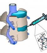 Биоинженеры Разрабатывают  Новый Подход, Чтобы Восстановить Диски Позвоночника