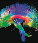 При Помощи Методик Восстанавливающих Волокна Спинного Мозга Можно Лечить Инсульт и Травмы Спинного Мозга