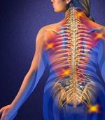 Оказание Медицинской Помощи при Травме Спинного Мозга