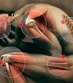 Нейропатическая Боль - Антиоксиданты Имеют Потенциал для Лечения