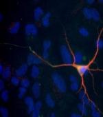 Ученые Создают Незрелые Нервные Клетки
