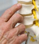 Общие Вопросы о Травме Спинного Мозга. Часть 2