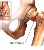 Остеопороз при Различных Повреждениях Спинного Мозга, Клиническая Оценка и Диагностика