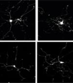 Аксоны Отделяются и Растут, Помогая Регенерации Нерва После Травмы Спинного Мозга