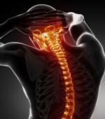Повреждения Спинного Мозга Резко Изменяют Жизнь