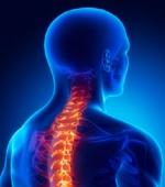 Травма Спинного Мозга - Ушибы и Сжатие