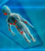 Способы Лечения Пролежней