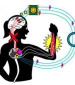 Восстановление Функций Рук с Помощью Искусственных Нейронных Соединений